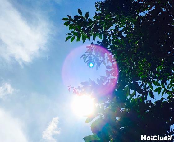 【保健コラム】熱中症と日射病って何が違って、どう気を付ければいいの?